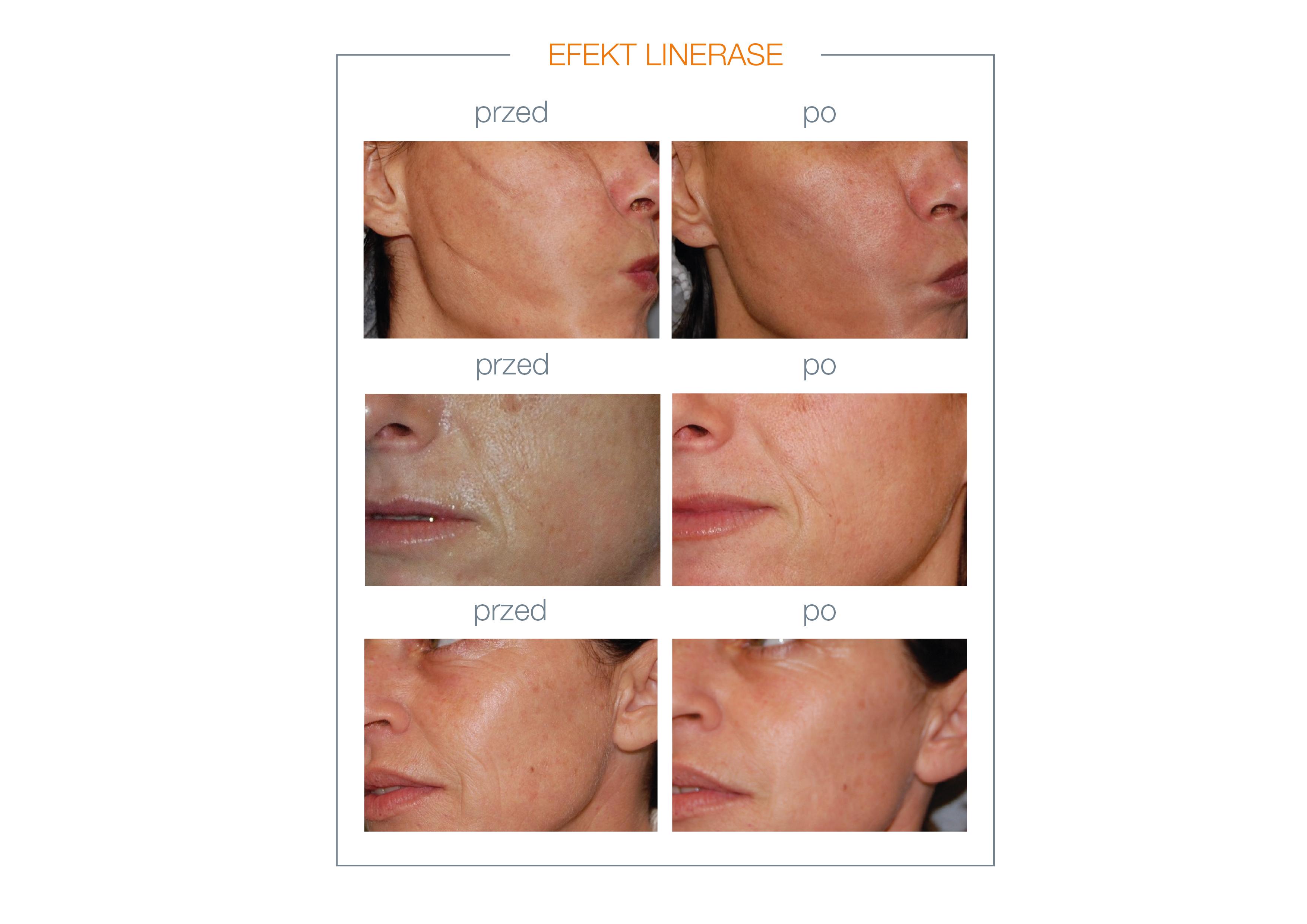 Linerase - efekty przed i po