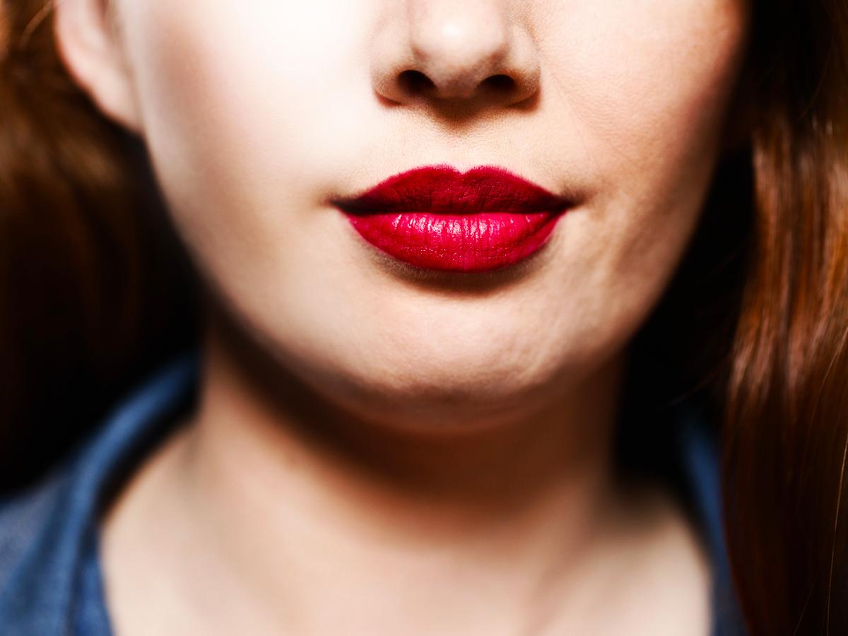 efekt wypełniania zmarszczek botoksem wokół ust